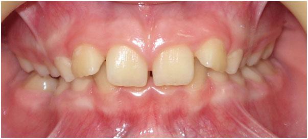 Ортодонтические пластинки глубокий прикус у ребенка