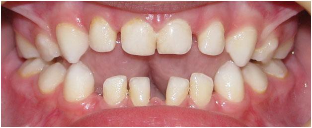 Зубы под пластинкой