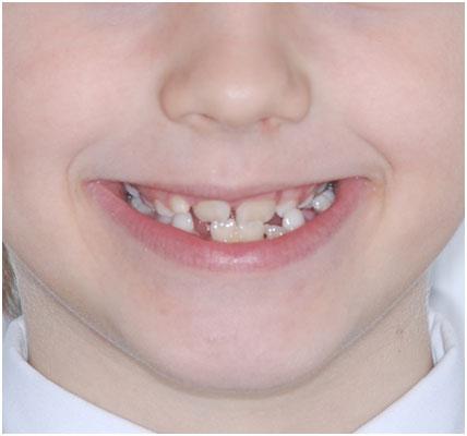 Ортодонтические пластинки перекрестный прикус у ребенка