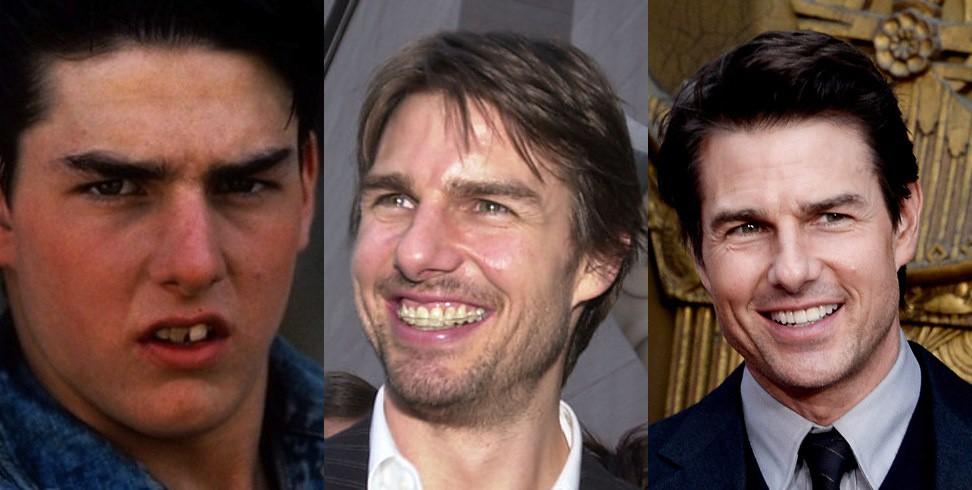 что о perfect smile veneers говорит стоматолог