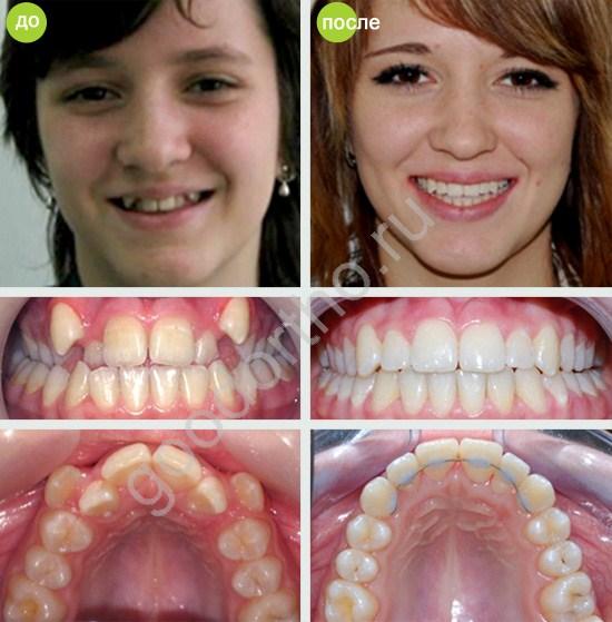 брекеты до и после фото клыки верхние зубы