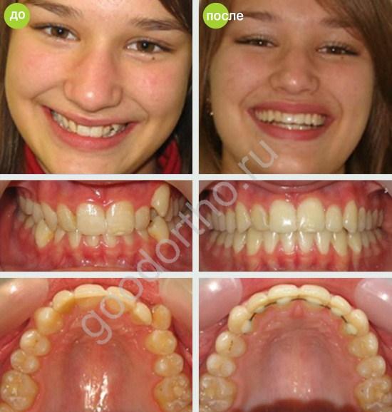 бесплатные как выровнять зубы после удаления зубов мужрости этом предусмотрена