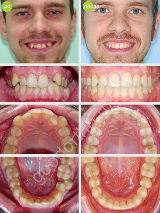 Кому удаляли один зуб для установки брекетов 82