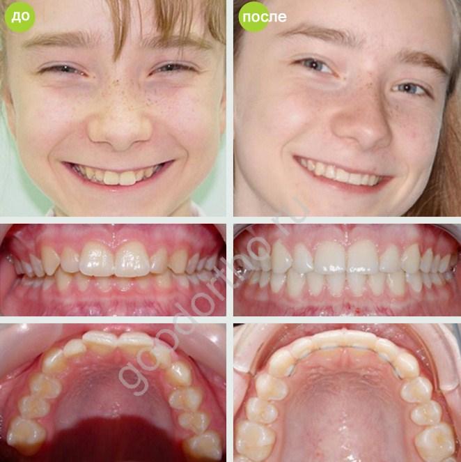 Помогают ли пластинки выровнять зубы